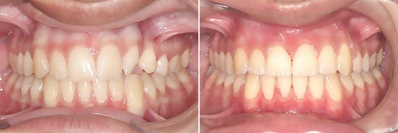 Central-Victorian-Orthodontics--Orthodontist-Bendigo-gallery-01