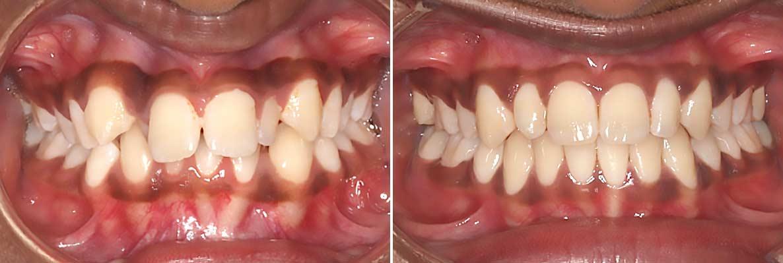 Central-Victorian-Orthodontics--Orthodontist-Bendigo-gallery-02