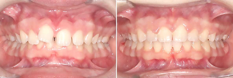 Central-Victorian-Orthodontics--Orthodontist-Bendigo-gallery-03