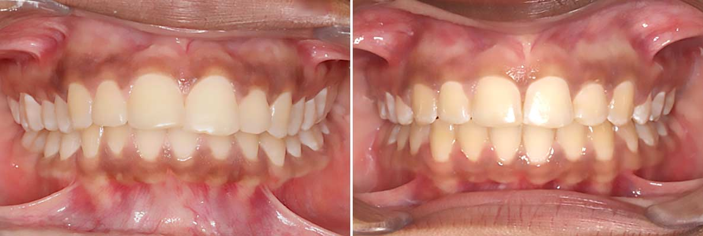 Central-Victorian-Orthodontics--Orthodontist-Bendigo-gallery-04