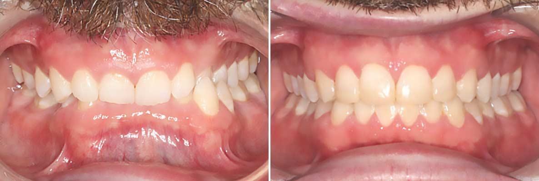 Central-Victorian-Orthodontics--Orthodontist-Bendigo-gallery-05