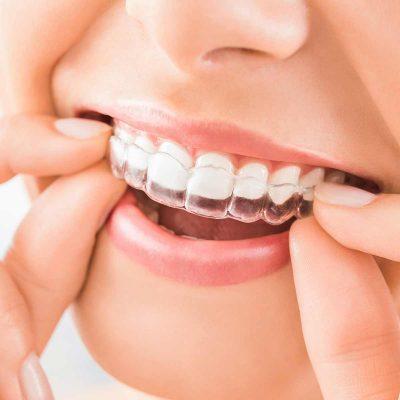 Central-Victorian-Orthodontics--Orthodontist-Bendigo-home-treatment-invisalign-01