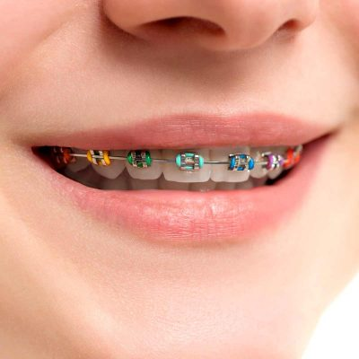 Central-Victorian-Orthodontics--Orthodontist-Bendigo-home-treatment-metal-ceramic-braces-01