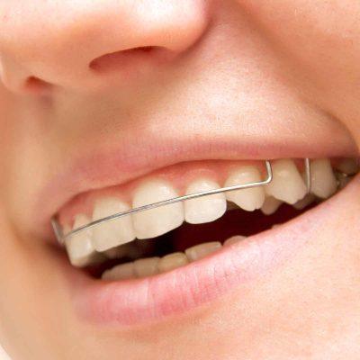 Central-Victorian-Orthodontics--Orthodontist-Bendigo-home-treatment-retainers-01